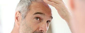 PRP caduta e diradamento capelli Busto Arsizio